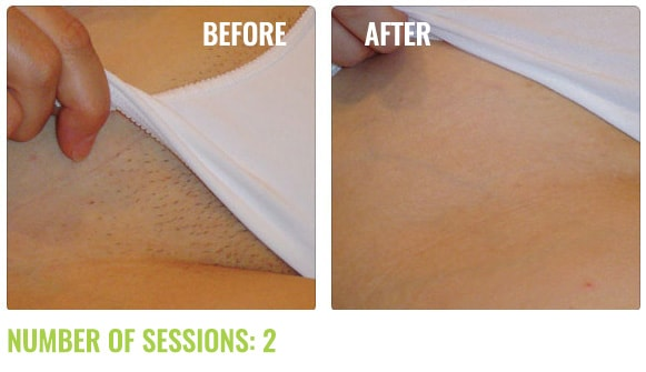 Soprano Ice Laser Hair Removal Before And After Results