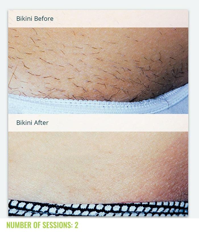 Laser4less Results - bikini laser hair removal