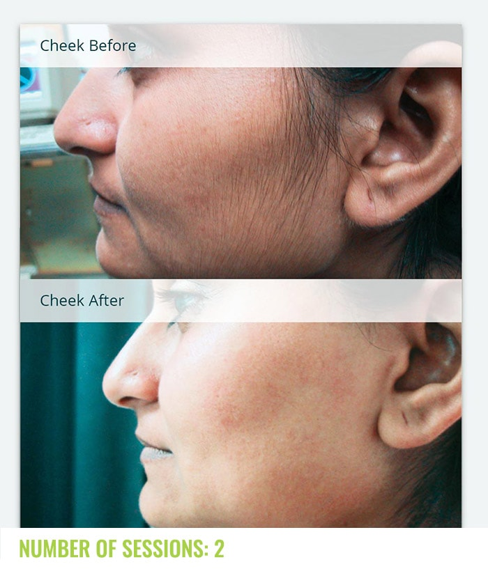 Laser4less Results - laser hair removal for cheeks