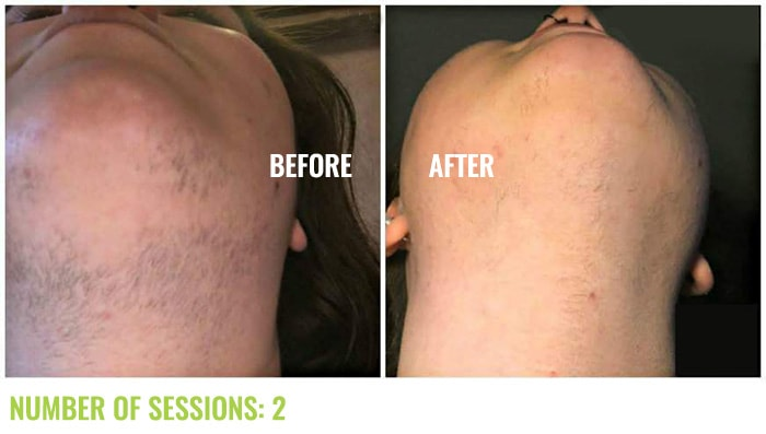 Laser4less Results - laser hair removal for chin and neck
