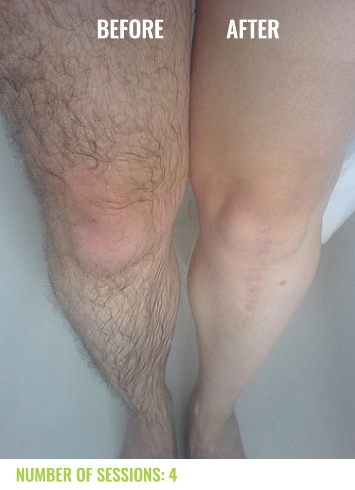 Laser4less Results - laser hair removal for legs