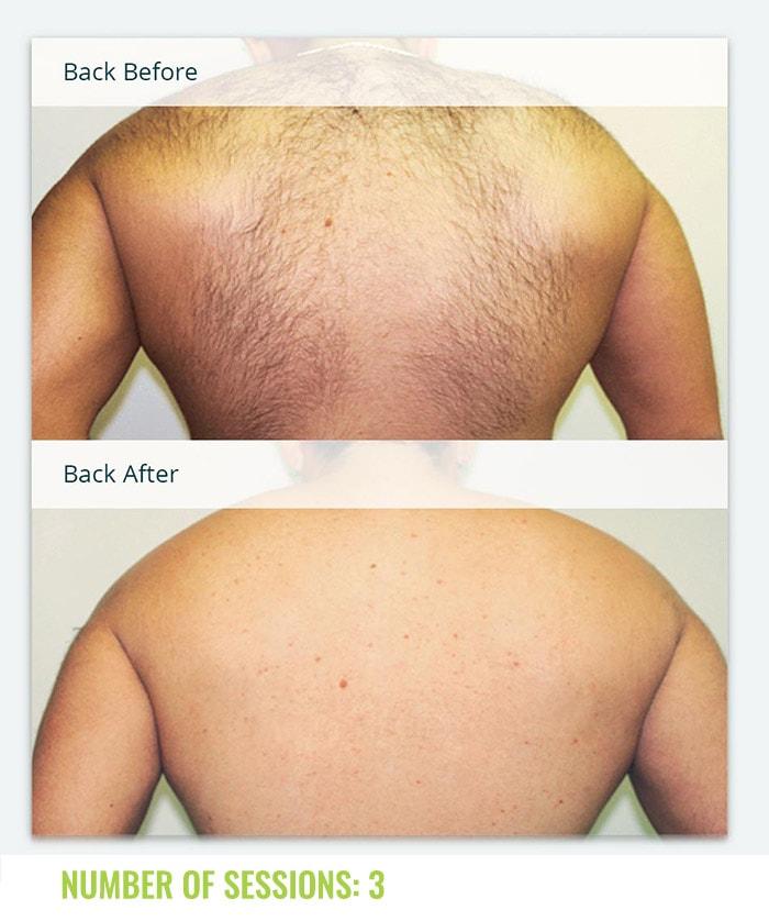 Laser4less Results - Man Back laser hair removal