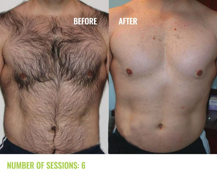 Laser4less Results - Man Chest laser hair removal