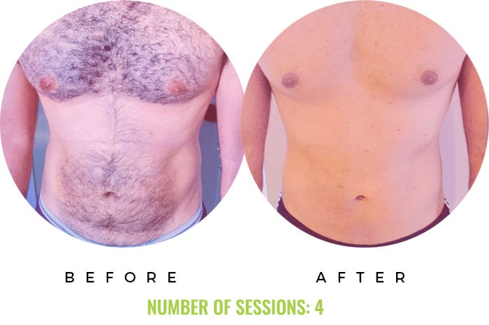 Laser4less Results - laser hair removal for chest