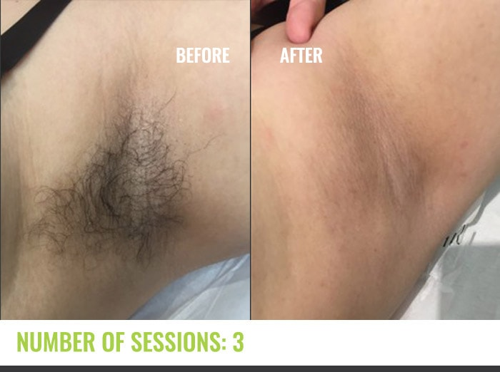 Laser4less Results - Under arms laser hair removal