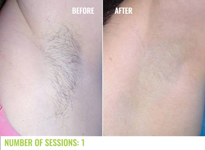 Laser4less Results - Underarms laser hair removal
